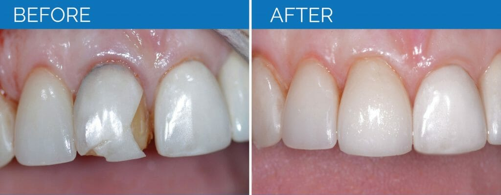 Before and After Chipped Tooth